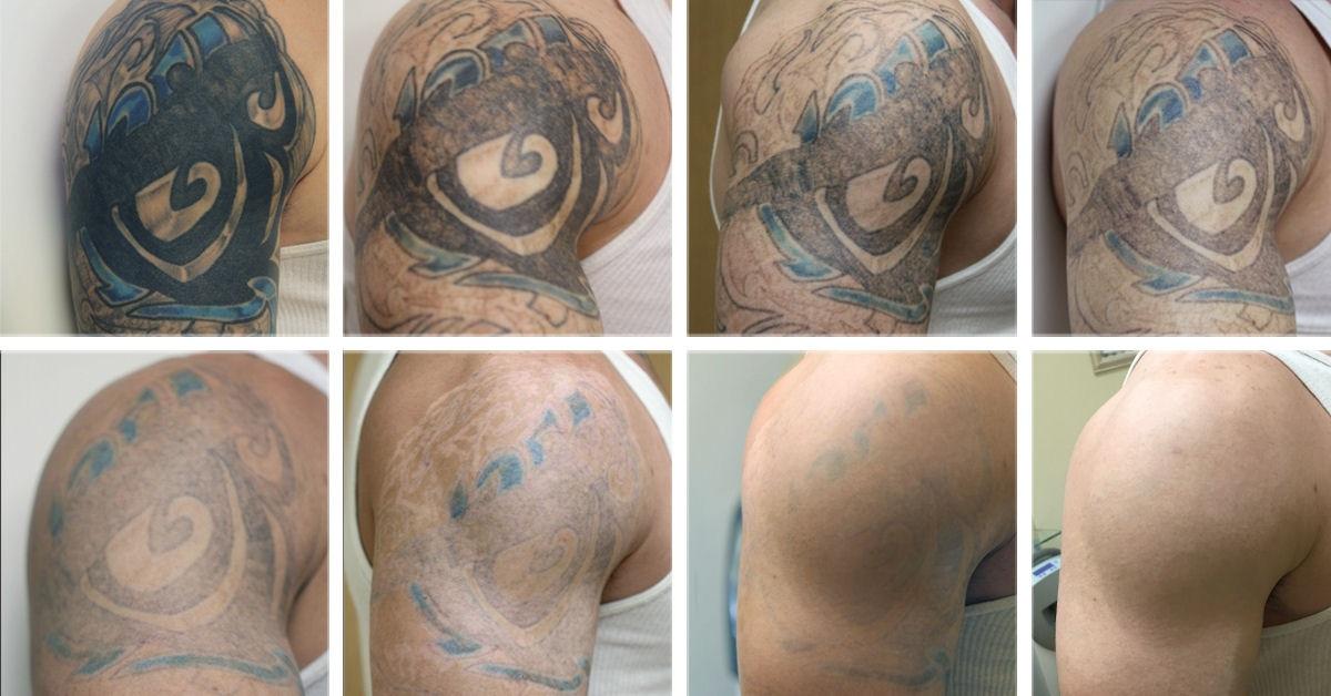 Un-tatouage-mal-saint-peut-nuire-à-votre-santé-3